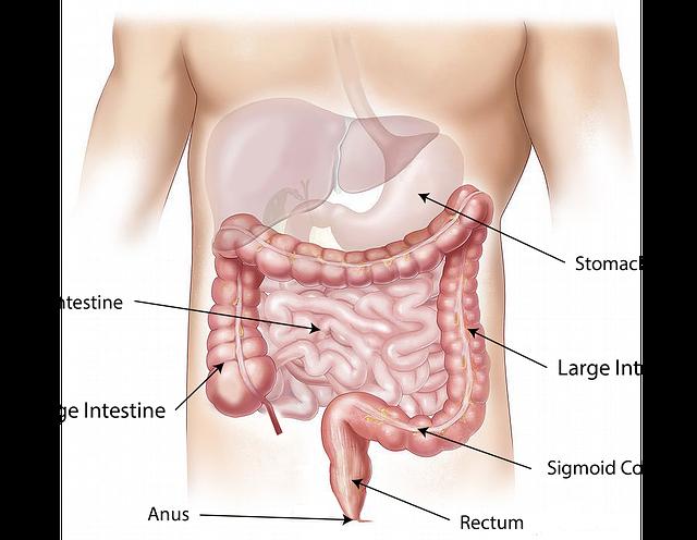 intestino e infiammazione intestinale
